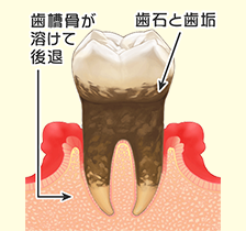 歯周病の進行3